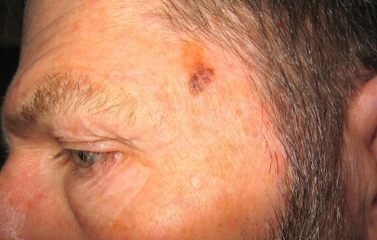 Example of a melanoma on the face.