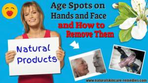 Age spots and how to remove them.