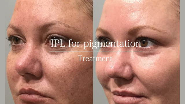 IPL Treatments Before and After - Image 1