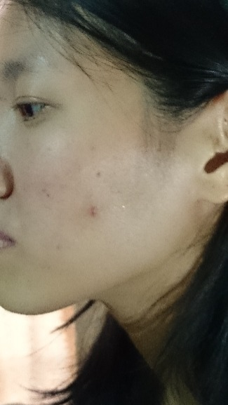 Cystic acne possibly a result of dietary causes of acne.