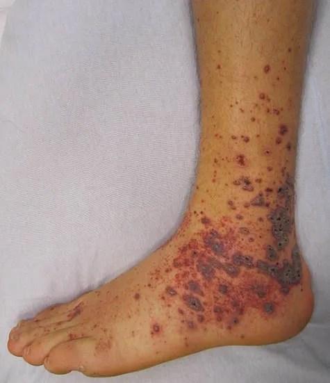 Purpura - Purple spots on skin.
