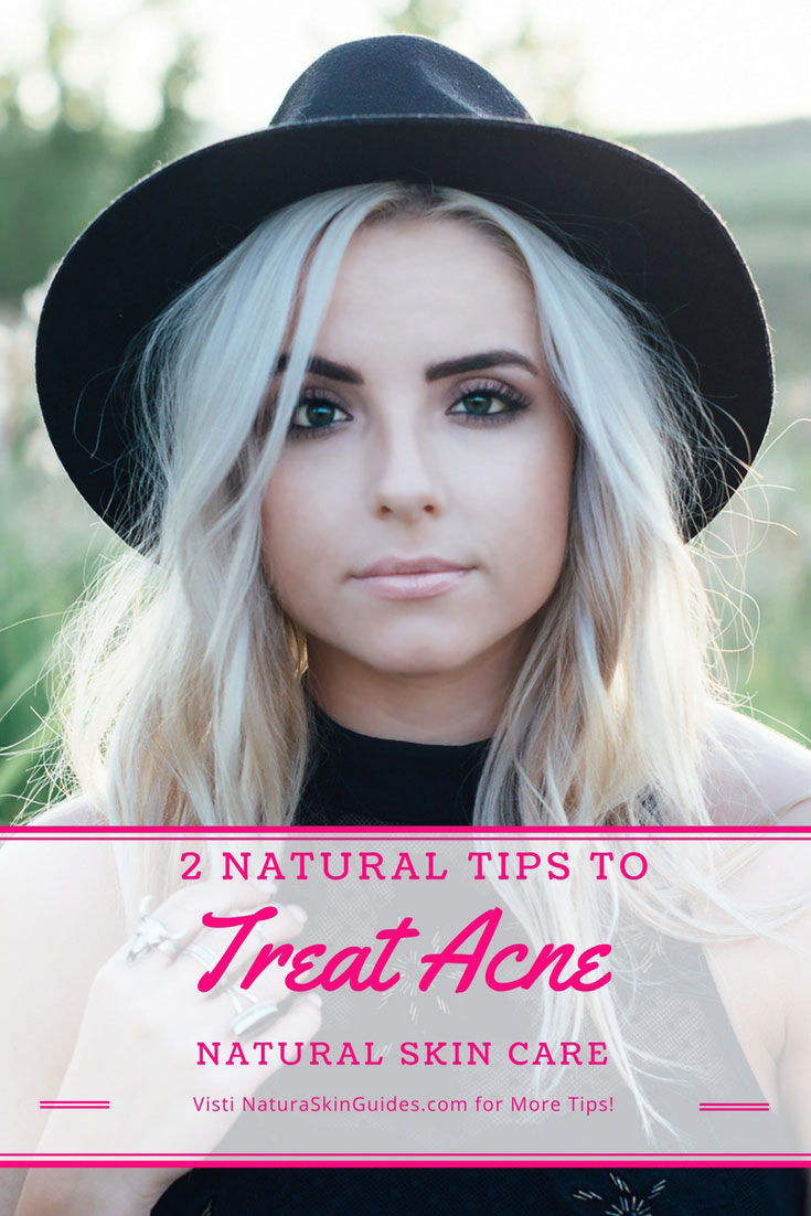 My Tips for Natural Acne Skin Care