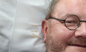 Heilung durch Ohrakupunktur