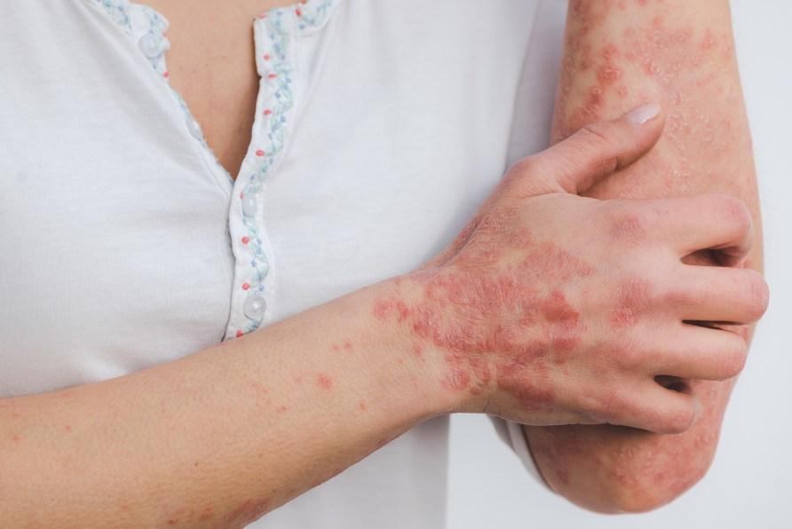 Psoriasis (Schuppenflechte) - Ursachen und Heilung