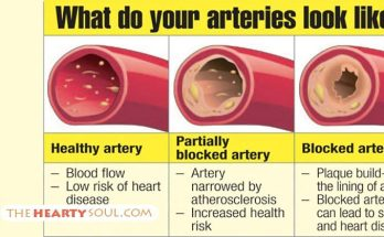 Are your arteries clogged
