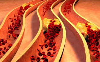 Foods to unclog arteries