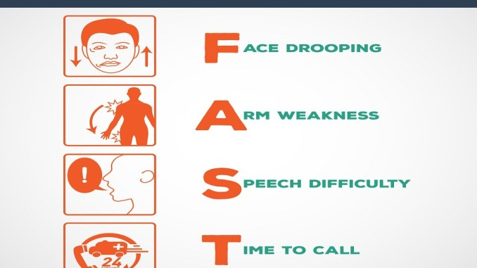 12 Symptoms Which Indicate You Had A Silent Stroke And. Program Signs. Psychotic Signs. Feb 16 Signs Of Stroke. Transient Ischemic Attack Signs. Number 10 Signs. Promise Signs Of Stroke. Thorax Signs. Illuminated Signs Of Stroke