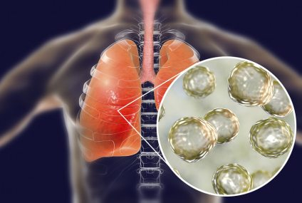 Fungal lung disease: the new infectious disease affecting Californians