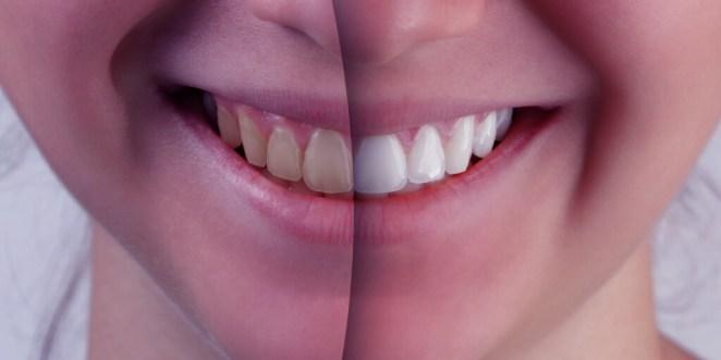 Whiten Teeth DIY_Yellow Teeth