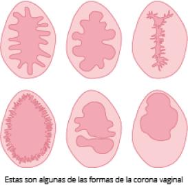corona-vaginal