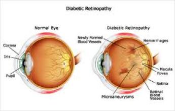 http://www.improveeyesighthq.com/images/Diabetic-Retinopathy.jpg