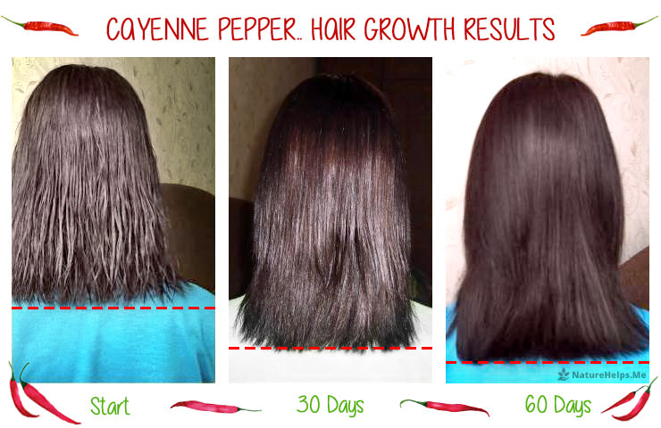 Cayenne Pepper Hair Growth Treatment  Benefits   Results Cayenne Pepper Hair Growth Results  Before and After