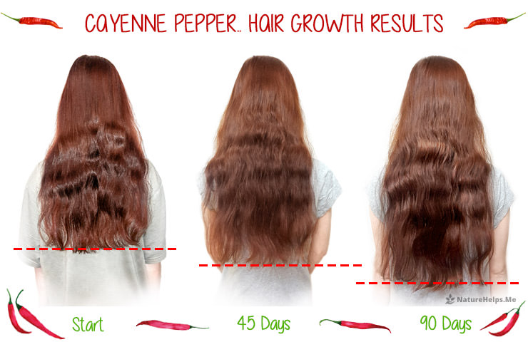 Cayenne Pepper Hair Growth Treatment Benefits Amp Results