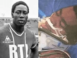 Meet Jean Pierre Adams Who Has Been In Coma For 39 Years