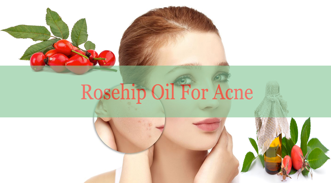 Rosehip Oil for Acne: How to Use and Its Amazing Benefits