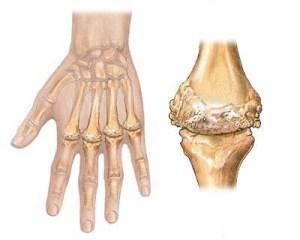 L'arthrose est-elle véritablement une usure du cartilage?