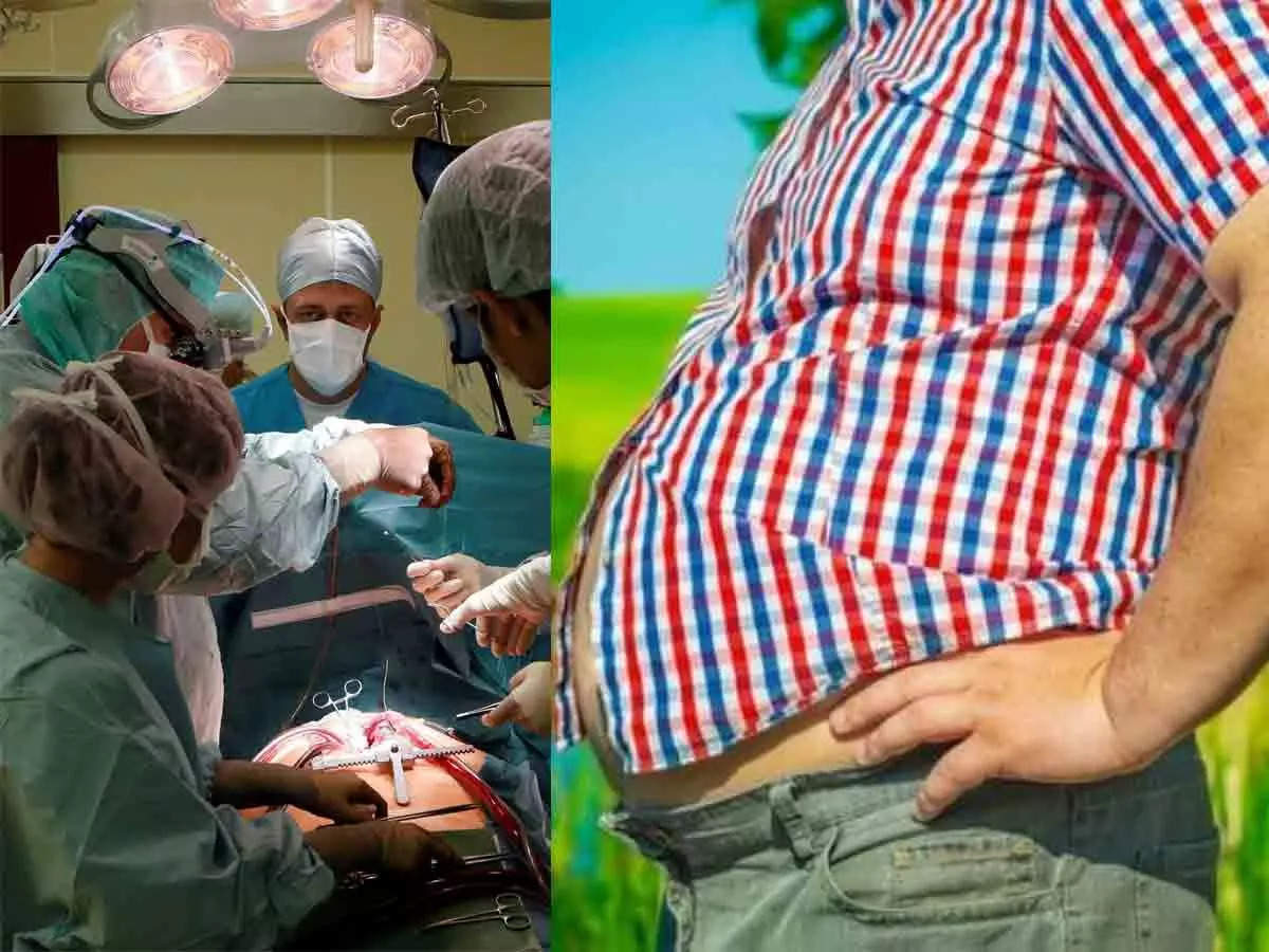 Weight loss surgery: Obesity is a risk factor for coronavirus collapse
