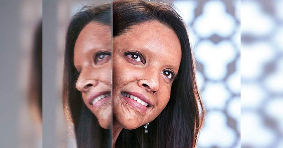 Chhapaak: Uttarakhand government affected by 'Chhapak', pension scheme will be started for acid attack victims – uttarakhand to start a pension scheme for acid attack survivors after inspired with chhapaak