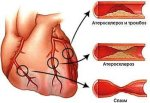 Тяготы стенокардии: обследование и лечение