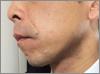 1182cc83r83s815b - ひげ脱毛の体験での口コミ情報4