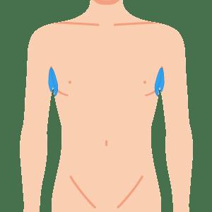 L body waki - メンズ全身 8部位脱毛 回数券 (4回)