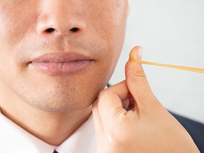 輪ゴムではじく程度 - メンズ脱毛の効果
