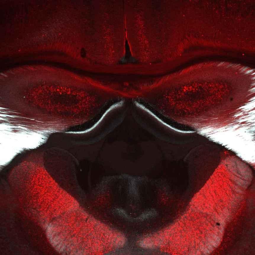 1. Erzsebet Gregori: Baboon