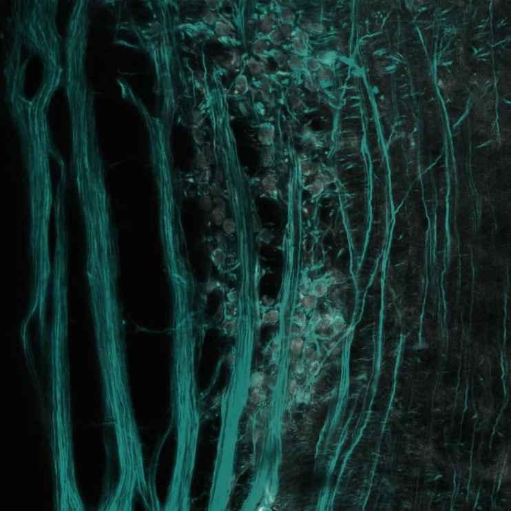 08-Eva-Krizsan-Epiphytes