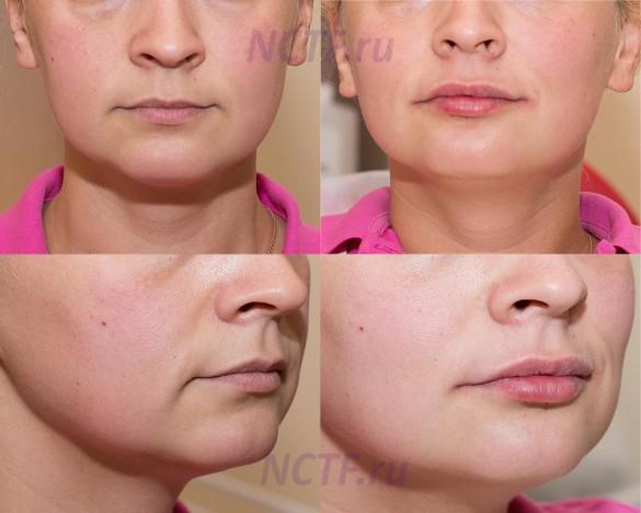 Ботокс в уголки губ выше и выше