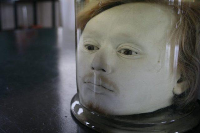 A cabeça deste serial killer ainda assombra a Fac. de Medicina de Lisboa