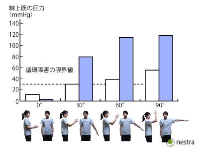 頸肩腕症候群原因表