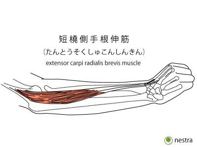 肘外側テニス肘