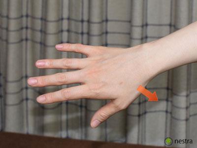 母指CM関節症3