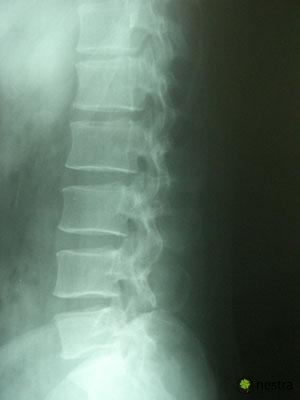 腰の痛みテスト-レントゲン