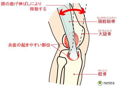 腸脛靭帯炎1