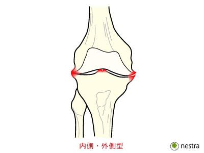 膝OA分類3