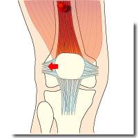 膝蓋骨不安定症アイキャッチ