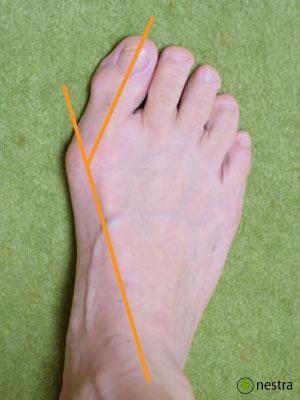 外反母趾治し方角度1