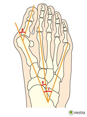 外反母趾X線測定