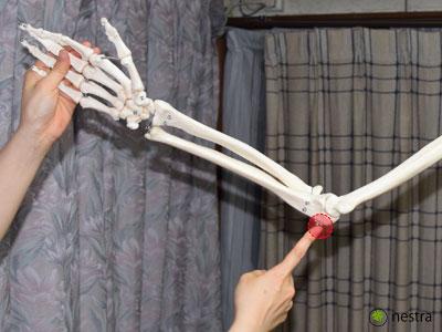 肘部管症候群-肘部神経溝_模型2