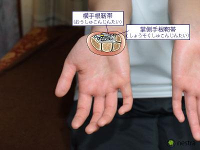手根管症候群1靭帯