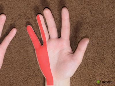 肘部管症候群-範囲