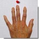 指の関節が腫れて痛くなったとき、簡単なクイズに答えて知るべきポイントを早わかりしよう!