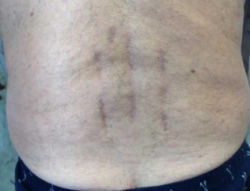 Lumbar Fracture Spine Pars