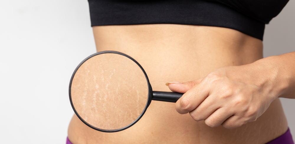 アルガンオイル 妊娠線 予防 - Nectarome ネクタローム