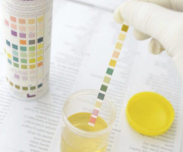 Fetzen urin weiße im 9 Alarmsignale