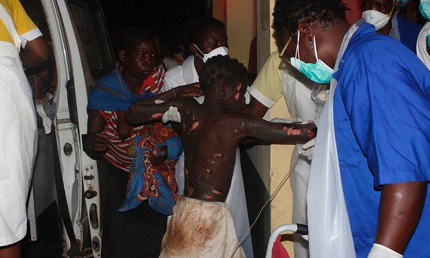 A badly injured person arrives at Tete hospital following the explosion that left at least 73 people dead. Photograph: Amos Zacarias/AFP/Getty Images