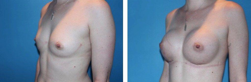300 cc smooth round silicone breast augmentation
