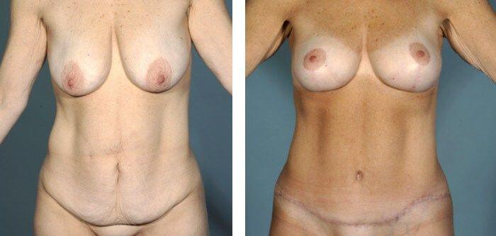 Breast Lift & Tummy Tuck