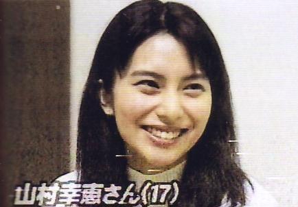 画像引用:http://seikei-bijo.com/wp-content/uploads/2013/10/kou_02.jpg